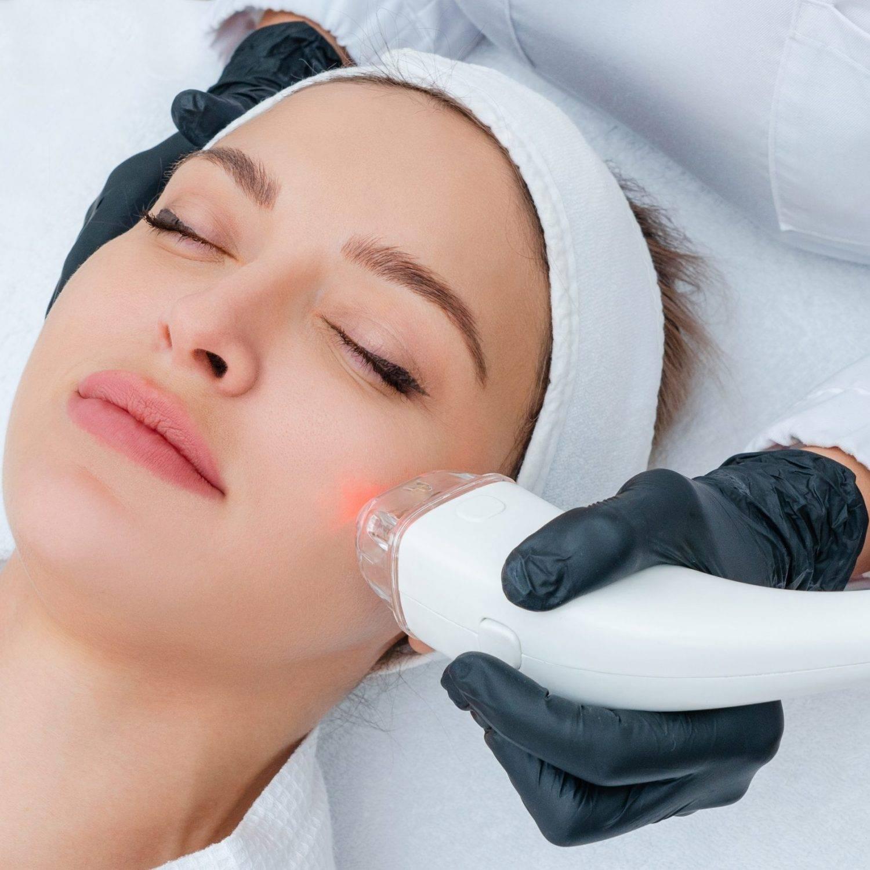 Face Laser Hair Removal Treatment - Abilene, TX